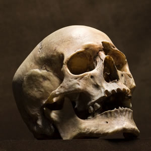 Antique or Collectible Skull